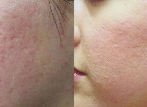 dermoabrazija prije i poslije rezultati