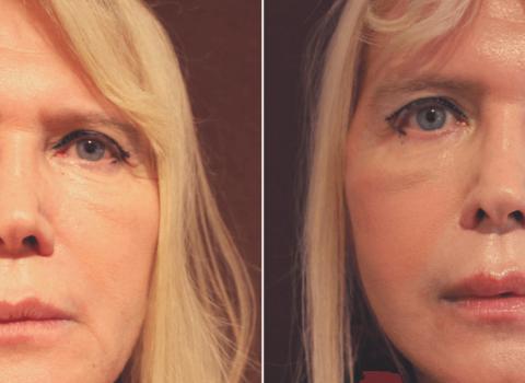 facelift prije i poslije rezultati