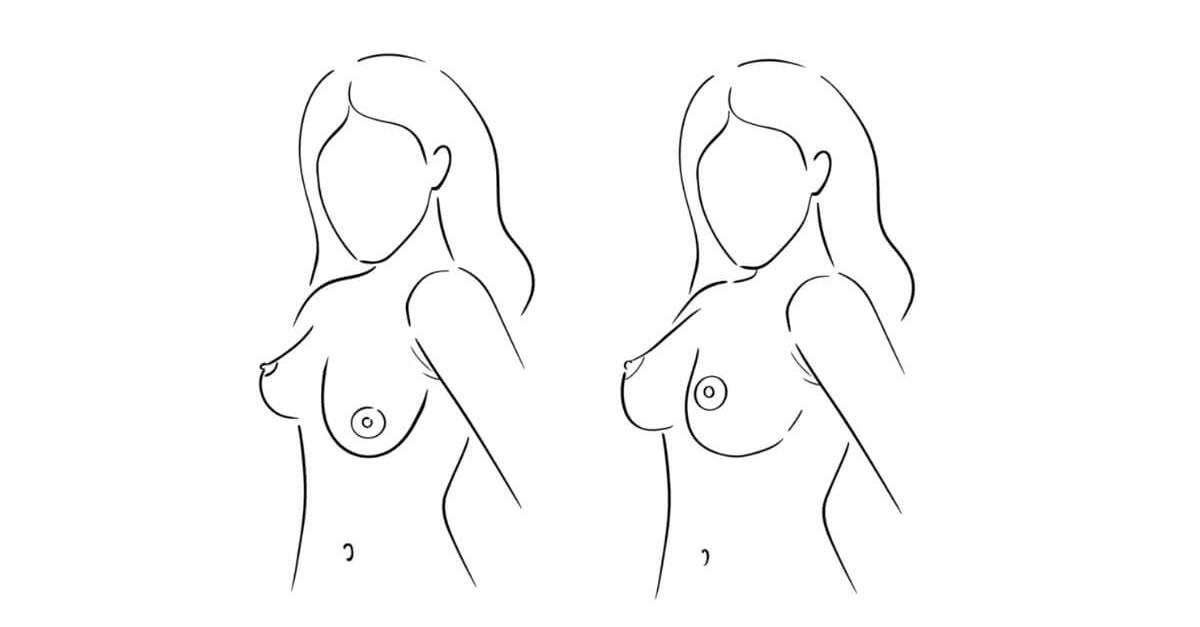 asimetrija grudi