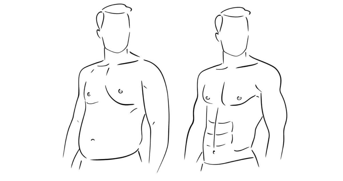 ginekomastija operacija