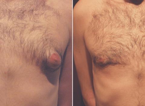 ginekomastija prije i poslije rezultati