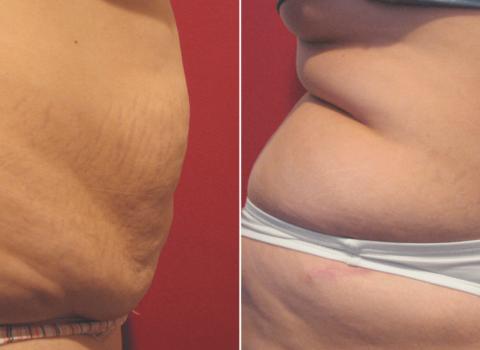 abdominoplastika prije i poslije rezultat